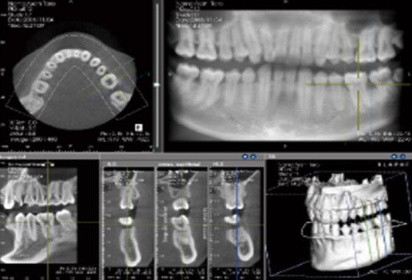 3次元CTにより詳細な診断が可能です。インプラント、歯周病、根幹治療(歯の根の治療)、顎関節症、矯正などの治療時に有効です。